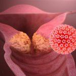 زگیل تناسلی (HPV)