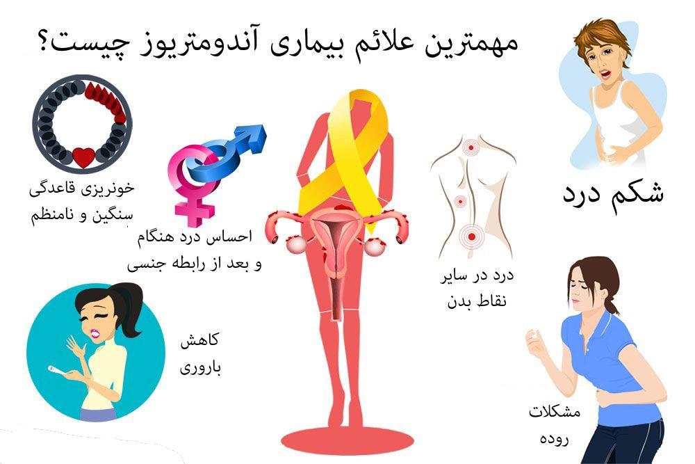 علائم اندومتریوز